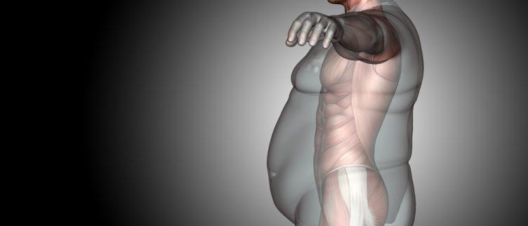 Afvallen met een maagballon; hoe effectief is het?